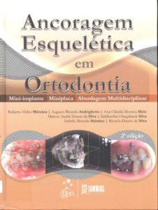 Ancoragem esquelética em ortodontia