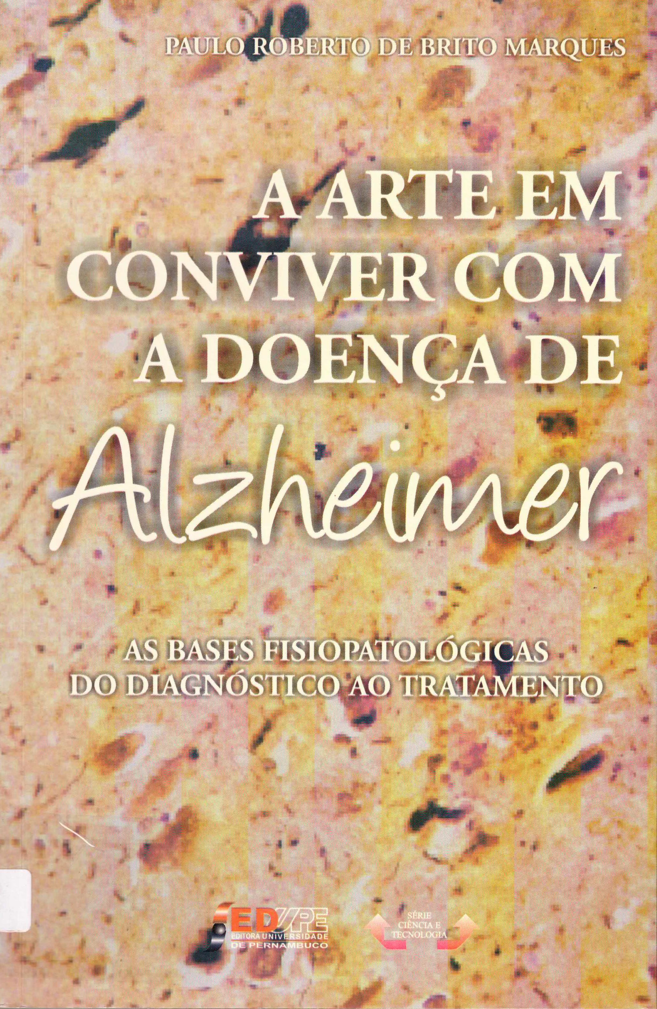 a arte em conviver com a doença de Alziheimer