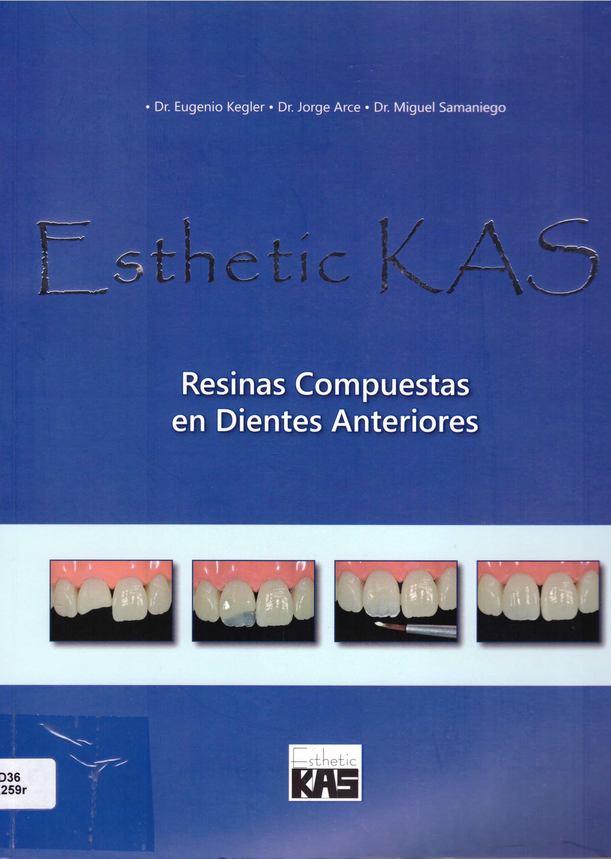 resinas compuestas en dientes anteriores
